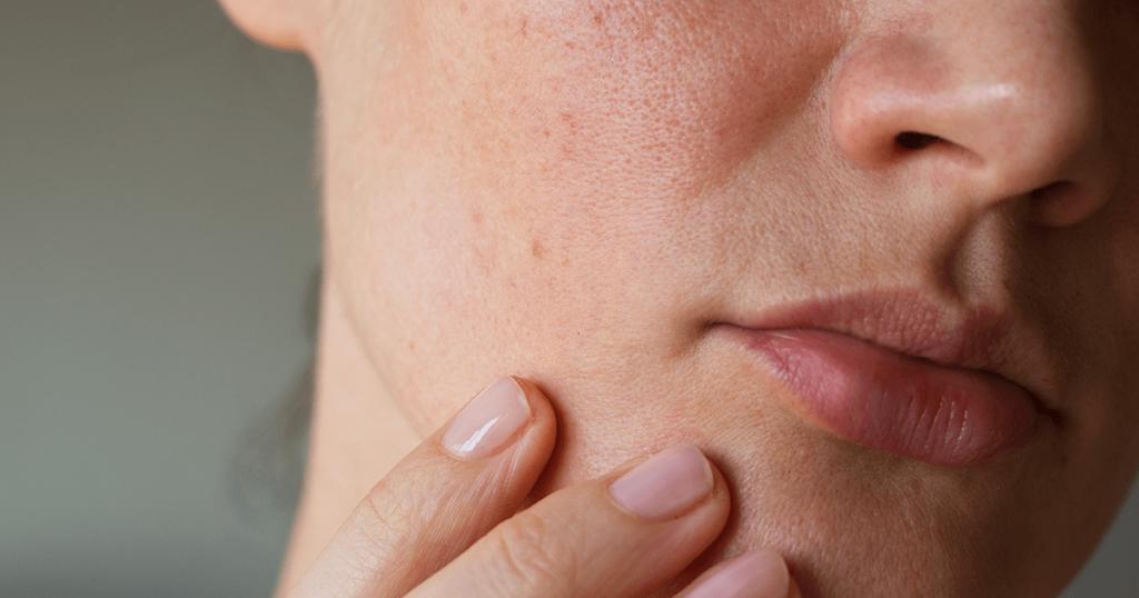 O que é a pele oliva e como identificá-la?