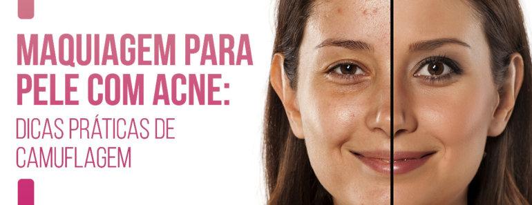 Maquiagem para pele com acne: dicas práticas de camuflagem